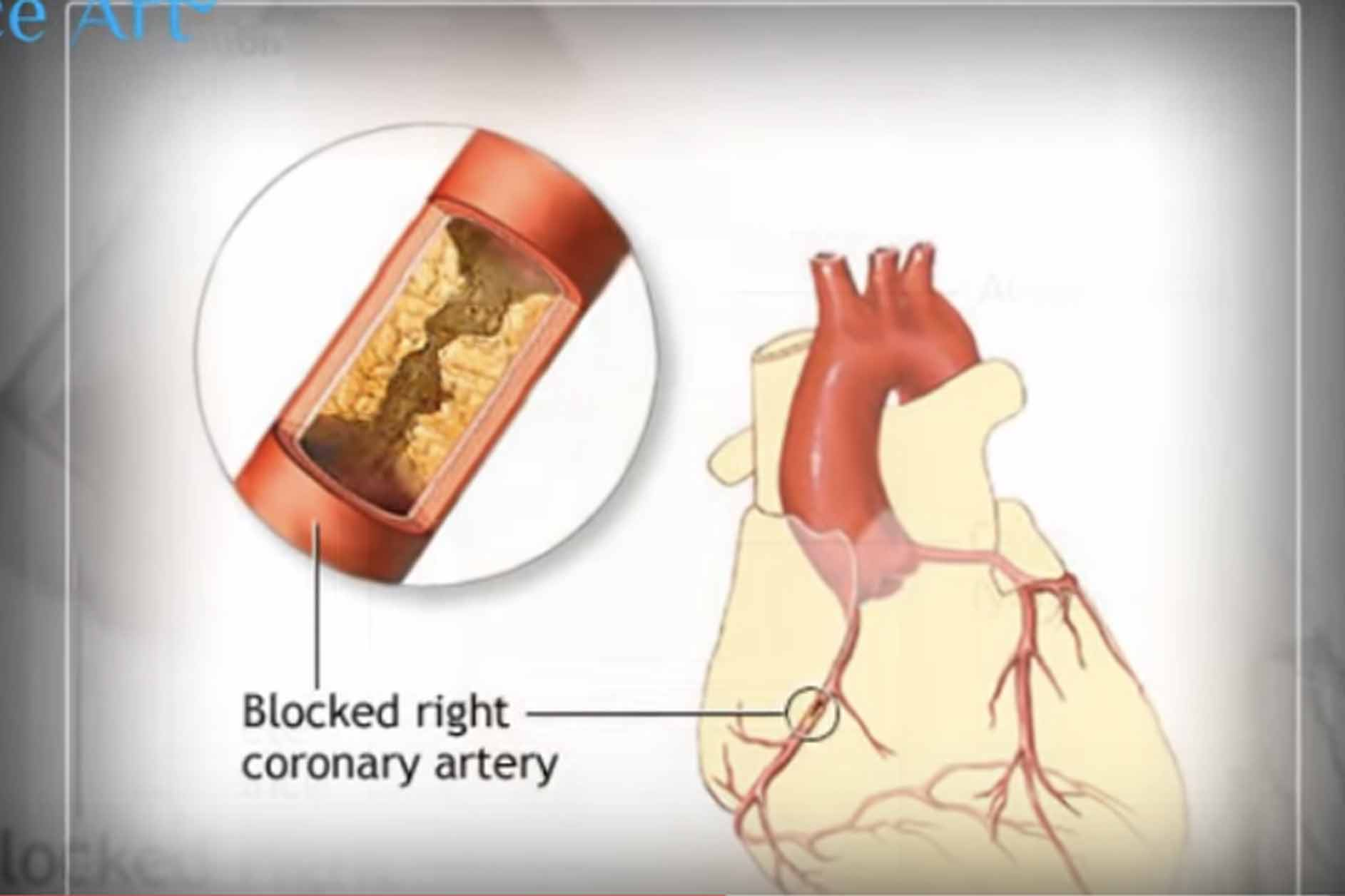 Angioplasty – explained