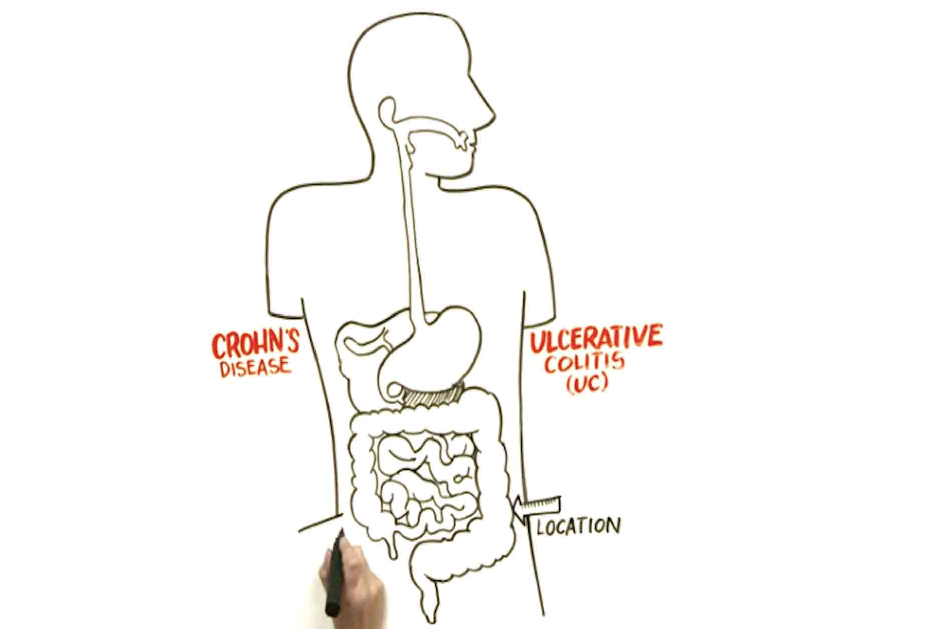 Nice Guidelines Gastrointestinal Digestive Tract Diagram